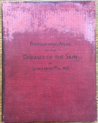 Photographic Atlas of the Diseases of the Skin, Volume III (vol. 3 only). George Henry Fox