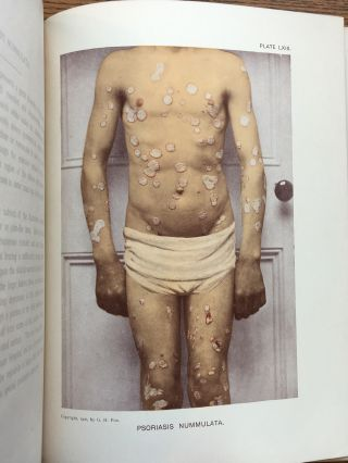 Photographic Atlas of the Diseases of the Skin, Volume III (vol. 3 only)